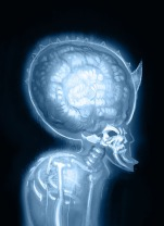giant brain